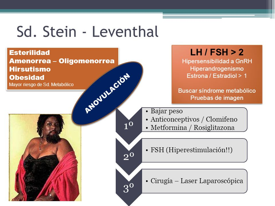 Sd. Stein - Leventhal 1º 2º 3º LH / FSH > 2 Esterilidad