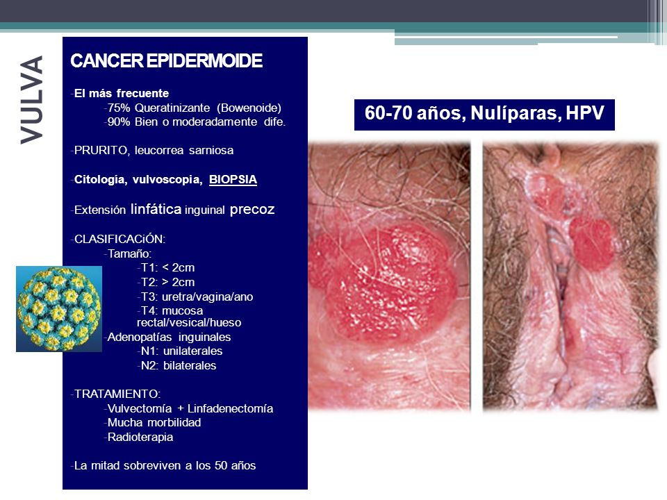 VULVA CANCER EPIDERMOIDE 60-70 años, Nulíparas, HPV