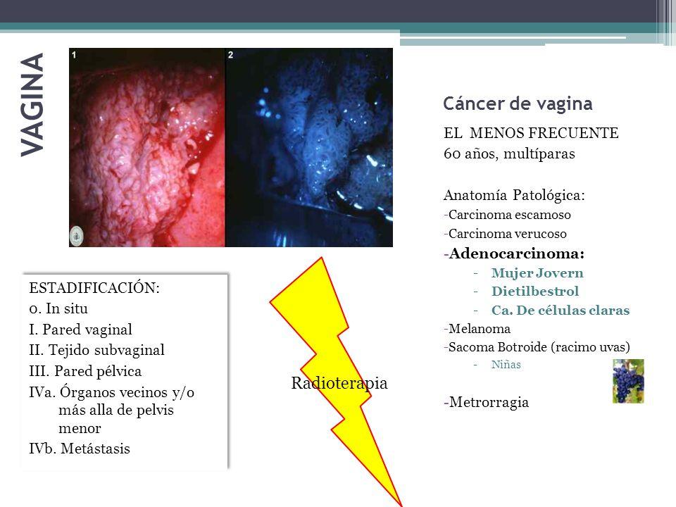 VAGINA Cáncer de vagina Radioterapia EL MENOS FRECUENTE
