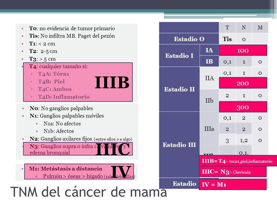 IIIB IIIC IV TNM del cáncer de mama 100 200 300 Estadio O Tis