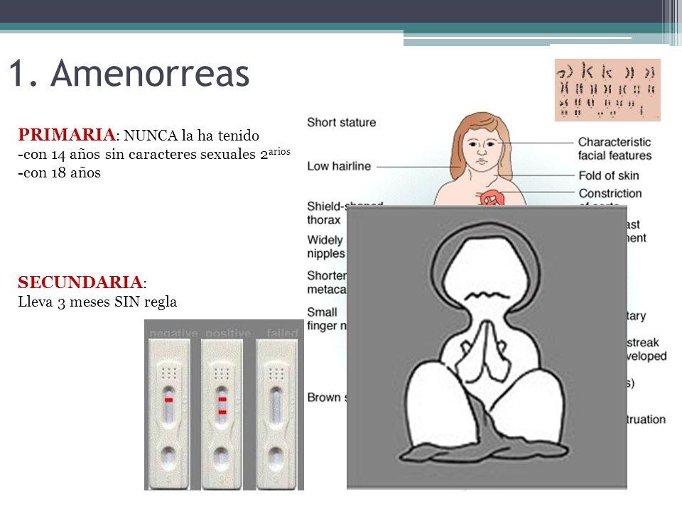 1. Amenorreas PRIMARIA: NUNCA la ha tenido SECUNDARIA: