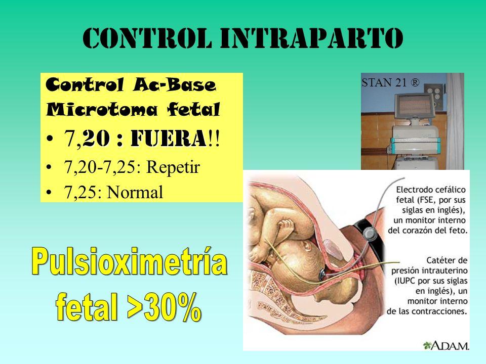Control intraparto 7,20 : FUERA!! Pulsioximetría fetal >30%