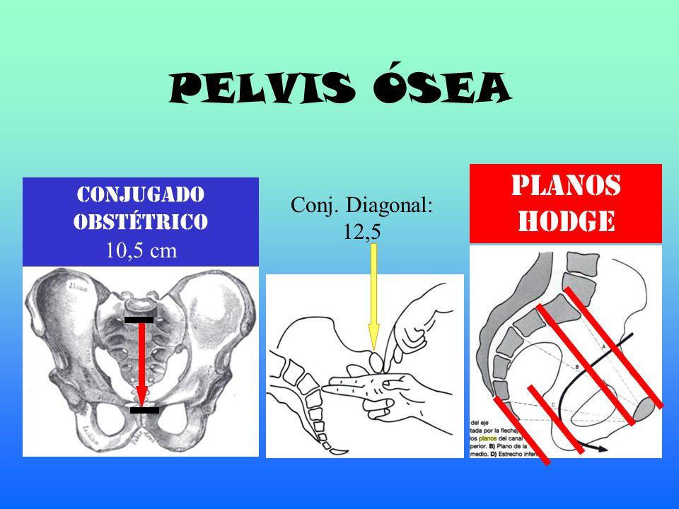 PELVIS ÓSEA PLANOS HODGE Conjugado Conj. Diagonal: Obstétrico 12,5