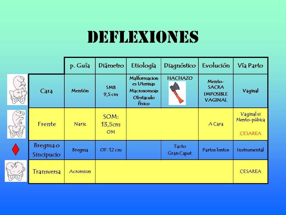 DEFLEXIONES p. Guía Diámetro Etiología Diagnóstico Evolución Vía Parto