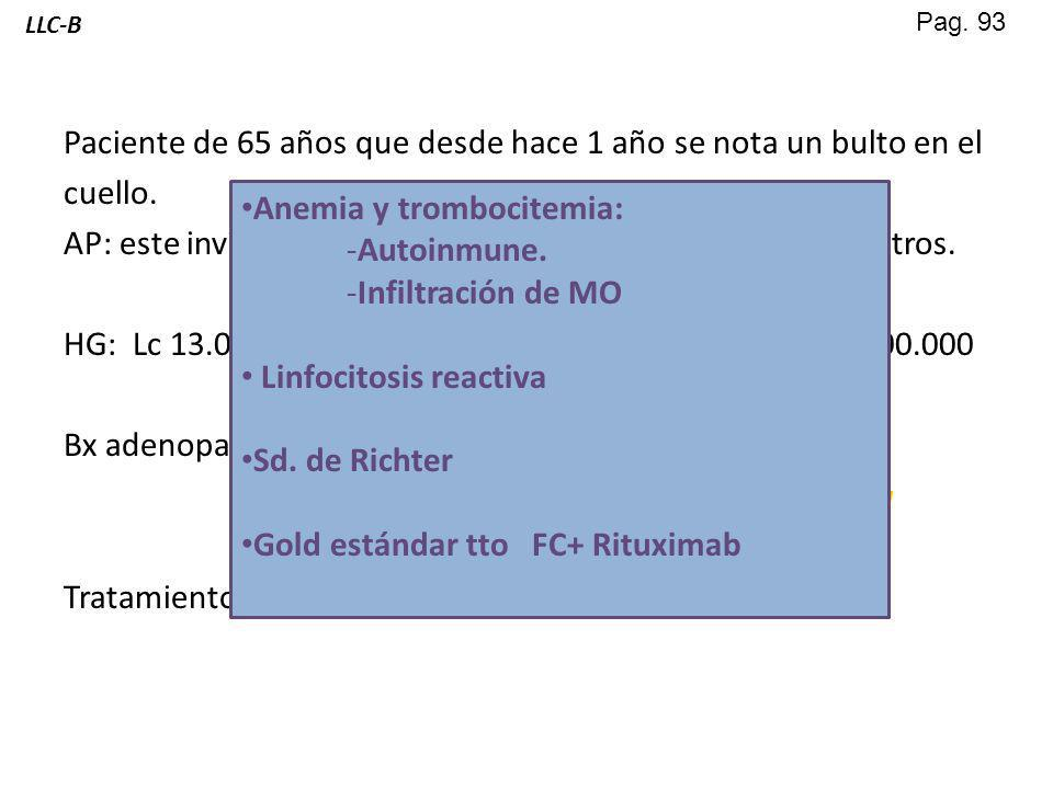 Anemia y trombocitemia: Autoinmune. Infiltración de MO