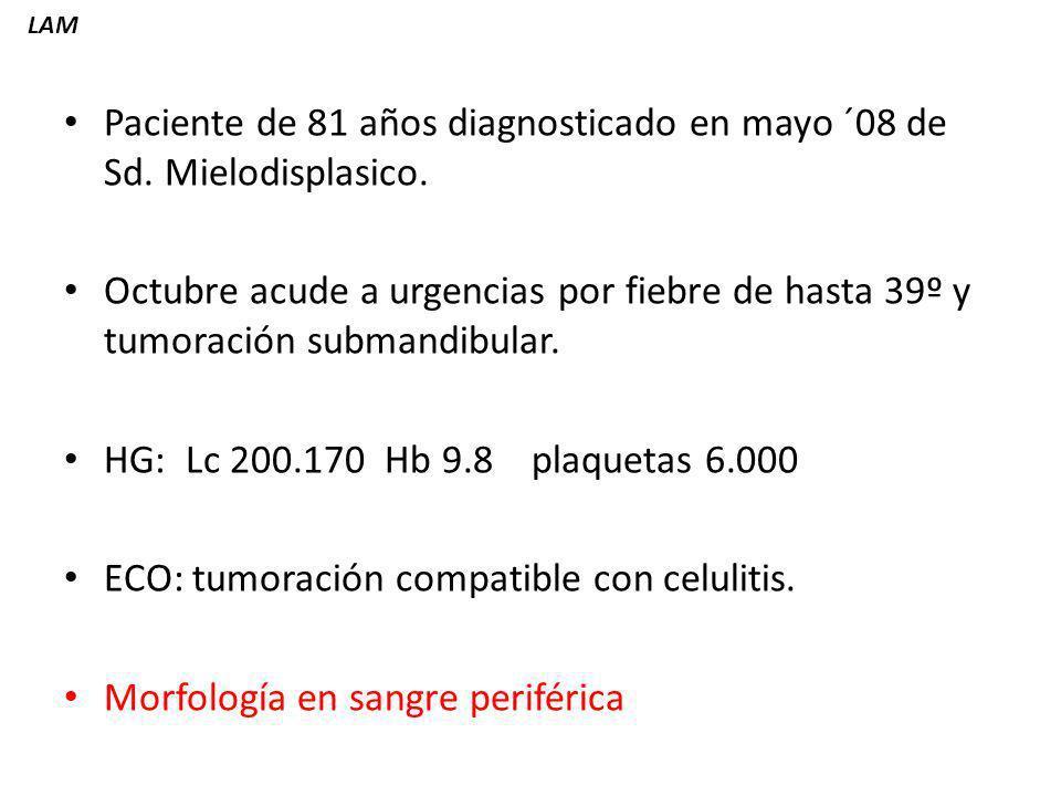 Paciente de 81 años diagnosticado en mayo ´08 de Sd. Mielodisplasico.