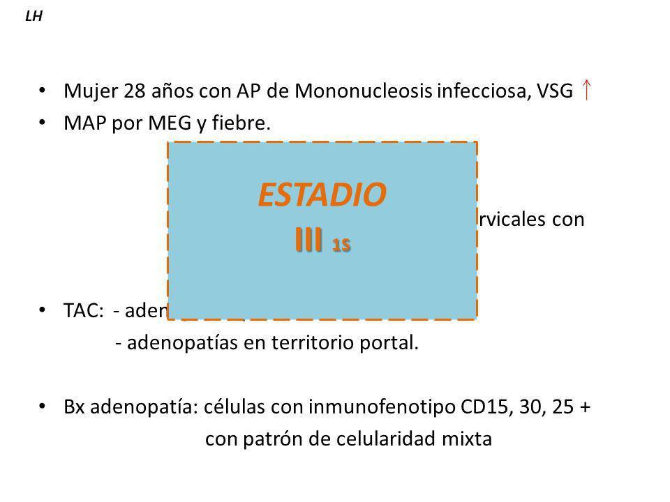 ESTADIO III 1S Mujer 28 años con AP de Mononucleosis infecciosa, VSG