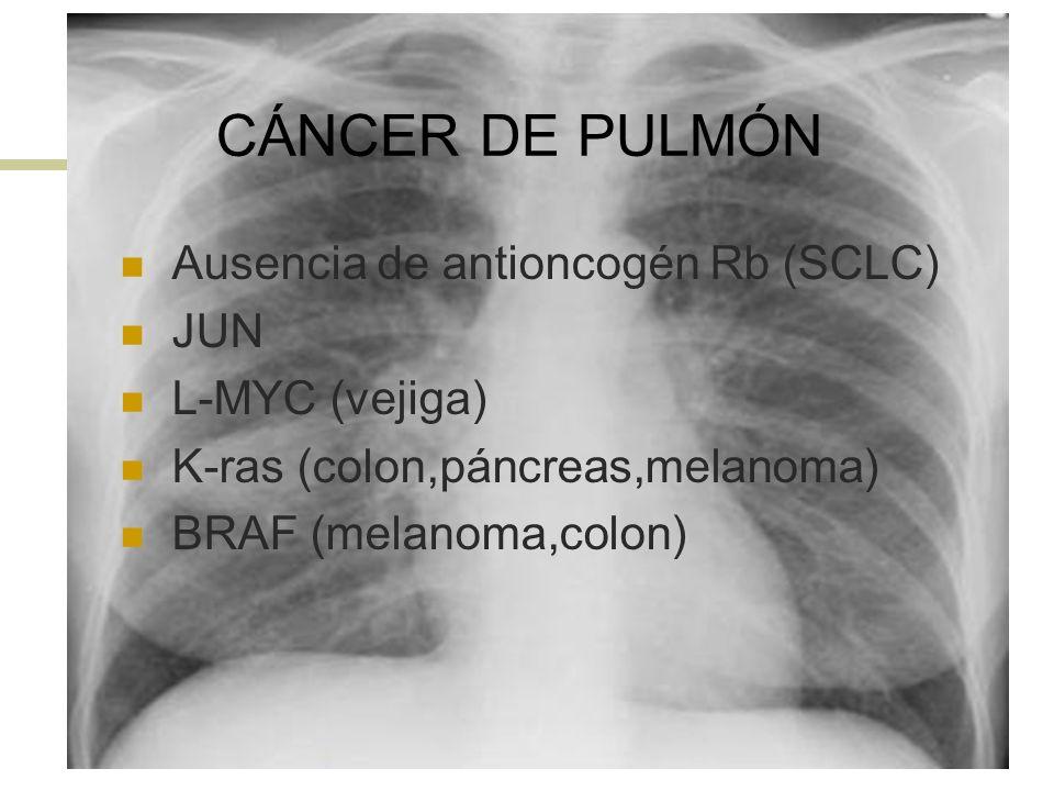 CÁNCER DE PULMÓN Ausencia de antioncogén Rb (SCLC) JUN L-MYC (vejiga)