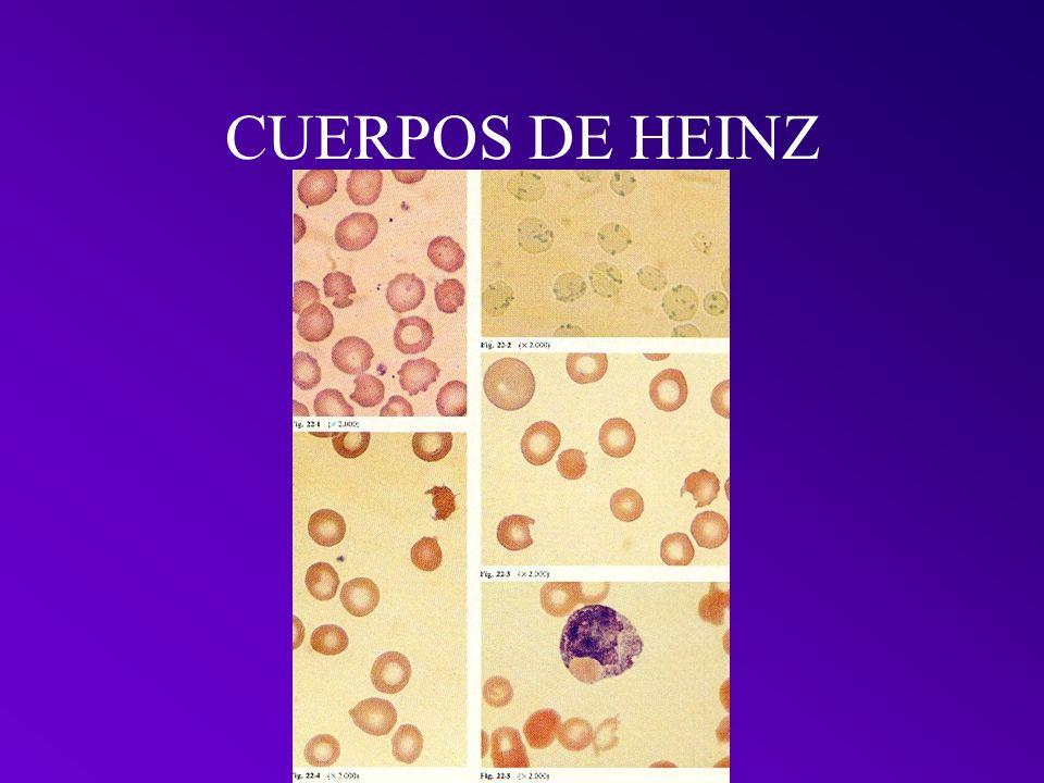CUERPOS DE HEINZ