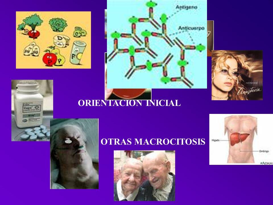 ORIENTACION INICIAL OTRAS MACROCITOSIS