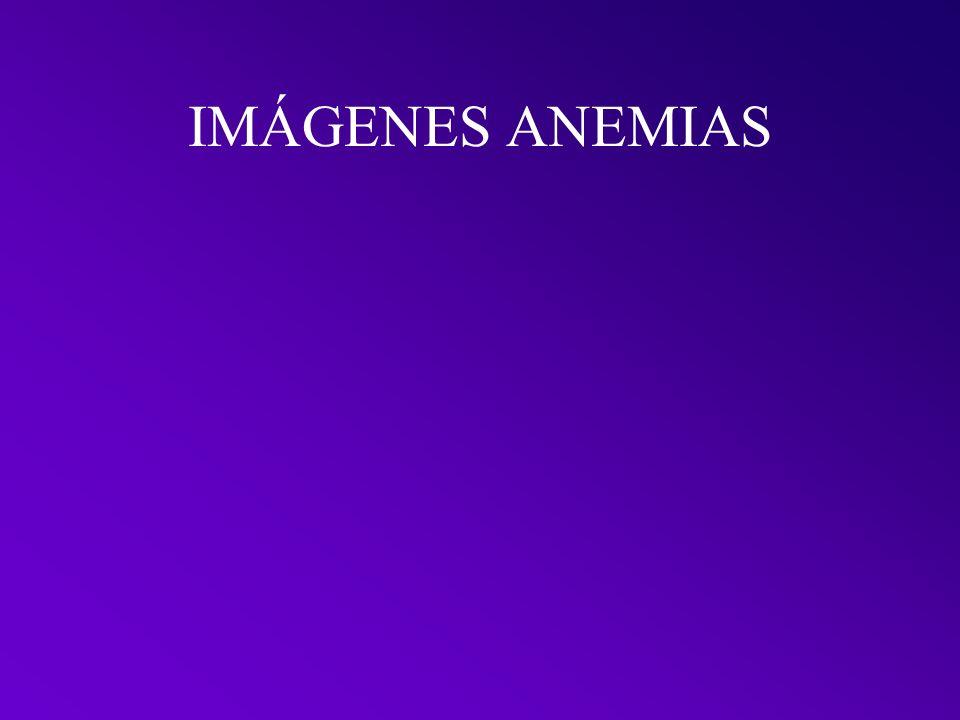 IMÁGENES ANEMIAS
