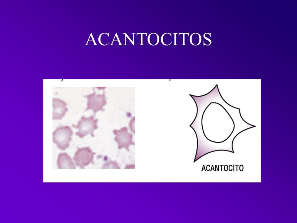 ACANTOCITOS