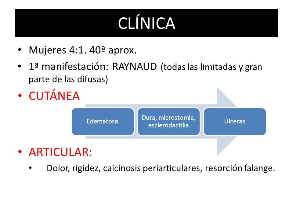 Dura, microstomía, esclerodactilia