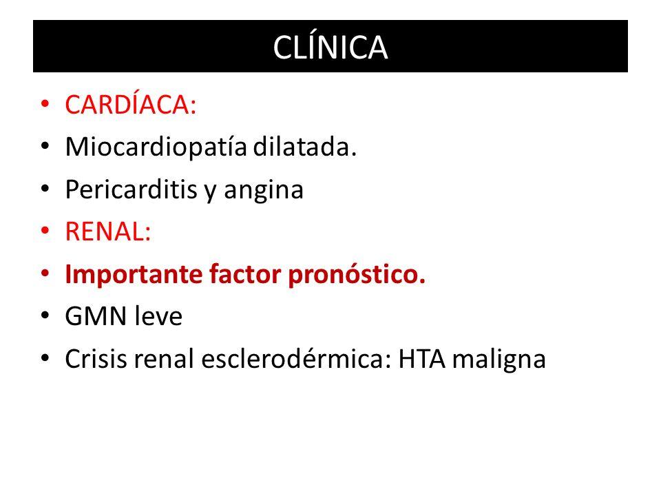CLÍNICA CARDÍACA: Miocardiopatía dilatada. Pericarditis y angina