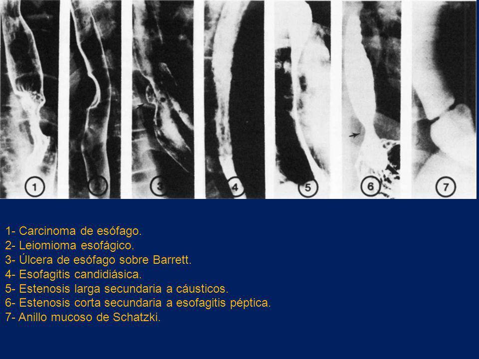 1- Carcinoma de esófago. 2- Leiomioma esofágico. 3- Úlcera de esófago sobre Barrett. 4- Esofagitis candidiásica.
