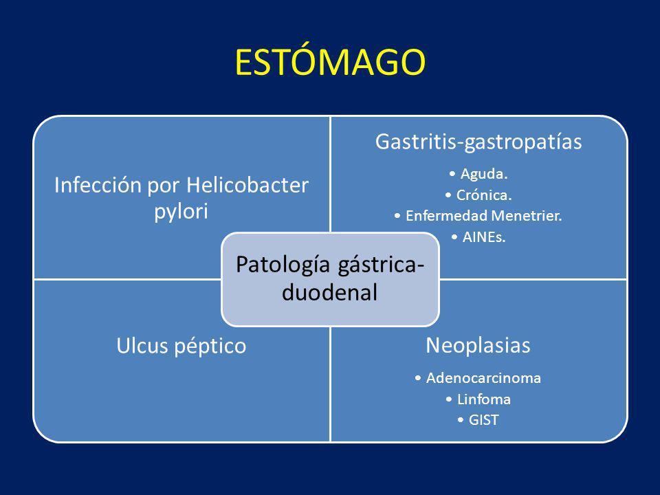 ESTÓMAGO Patología gástrica-duodenal Infección por Helicobacter pylori