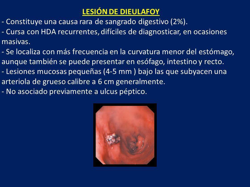 LESIÓN DE DIEULAFOY Constituye una causa rara de sangrado digestivo (2%).