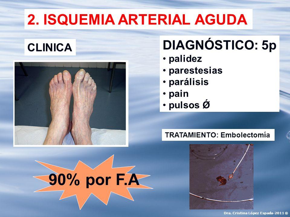 90% por F.A 2. ISQUEMIA ARTERIAL AGUDA DIAGNÓSTICO: 5p CLINICA palidez