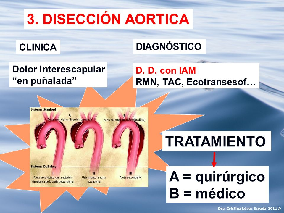 3. DISECCIÓN AORTICA TRATAMIENTO A = quirúrgico B = médico CLINICA