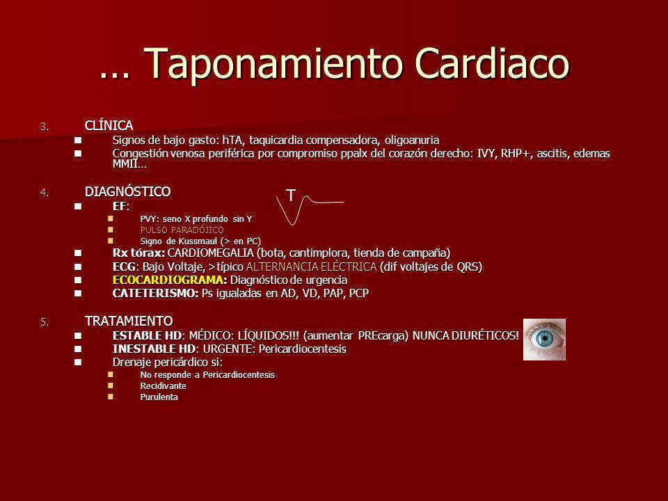 … Taponamiento Cardiaco