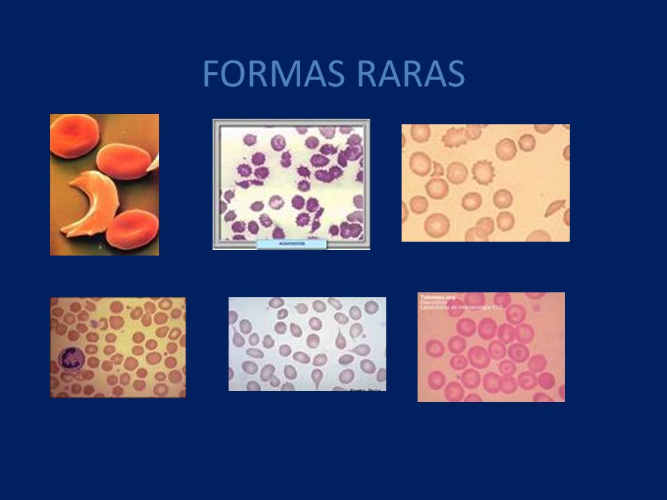 FORMAS RARAS