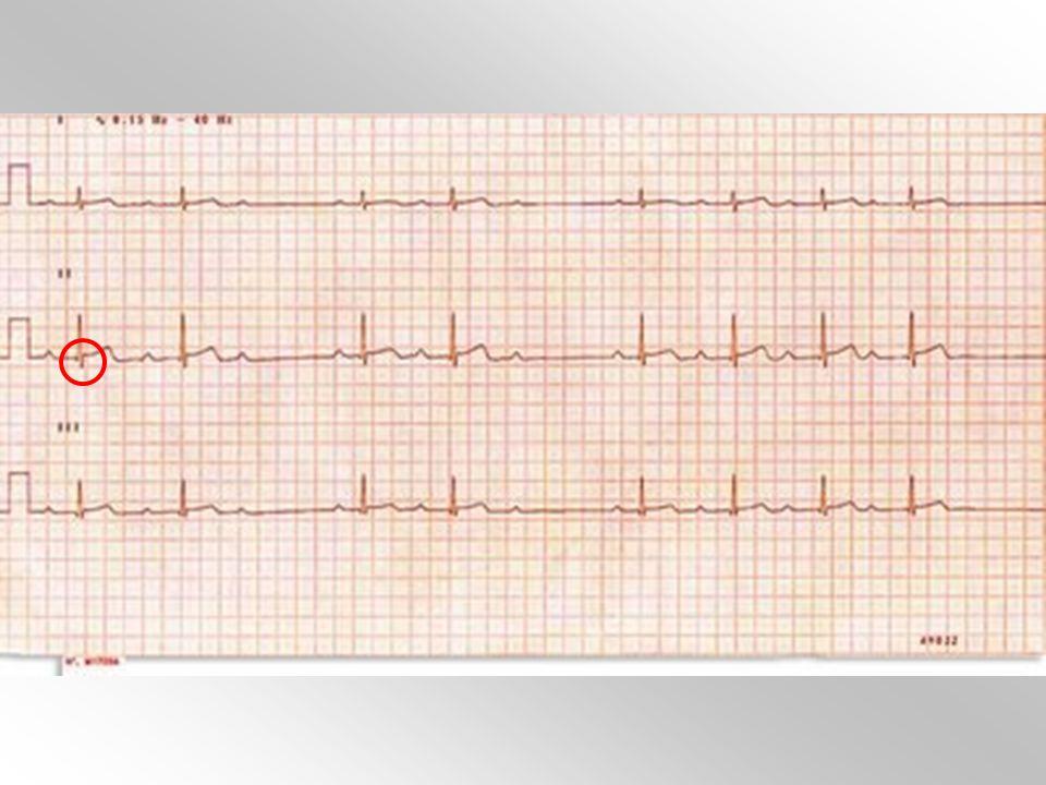 Pregunta 34 Un señor de 83 años asintomático se realiza un ECG (figura) previo a intervención de cataratas. Ante la vista del mismo, ¿qué opción es la más adecuada