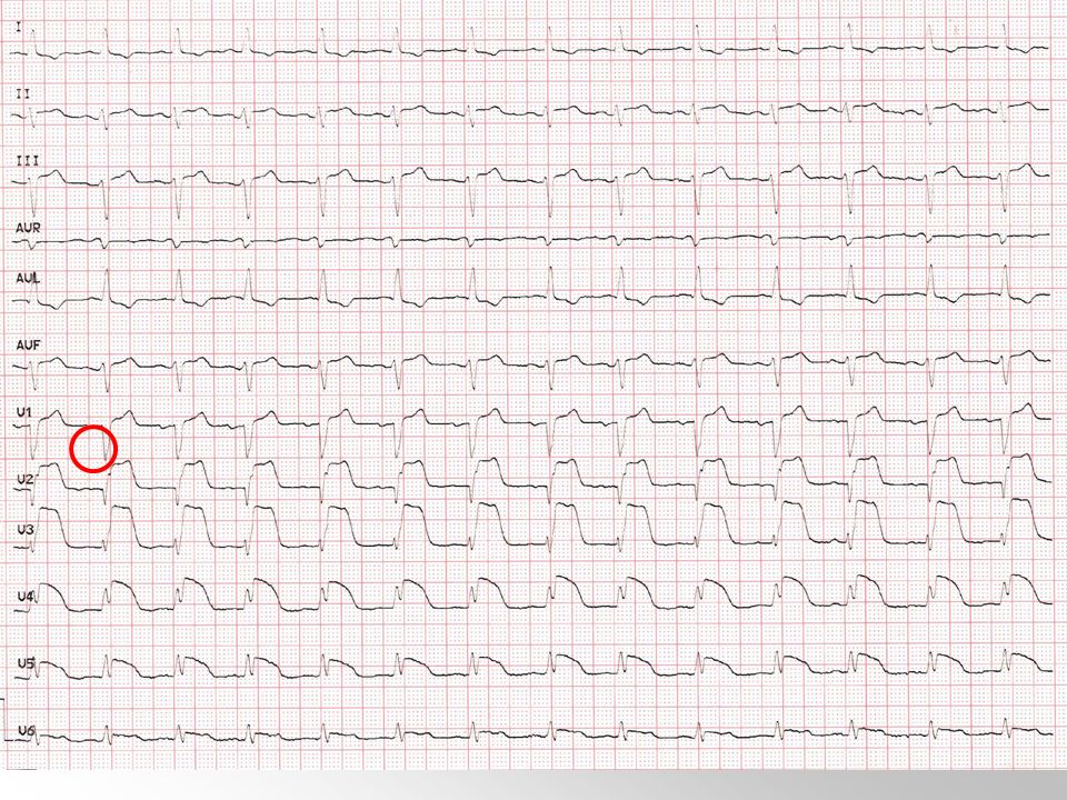 Pregunta 35. Una mujer hipertensa mal controlada e hiperlipémica, de 63 años de edad, es llevada a Urgencias por presentar cuadro disminución brusca del nivel de conciencia de forma mantenida. Los minutos previos a esto se quejó de intenso dolor torácico. A su llegada la enferma está comatosa, arreactiva y con muy mal estado general, hipoperfusión distal severa, sin crepitantes a la ACR. La TA es de 58/33 mm Hg. Se realiza ECG que se muestra en la figura. Ante esto lo más correcto es