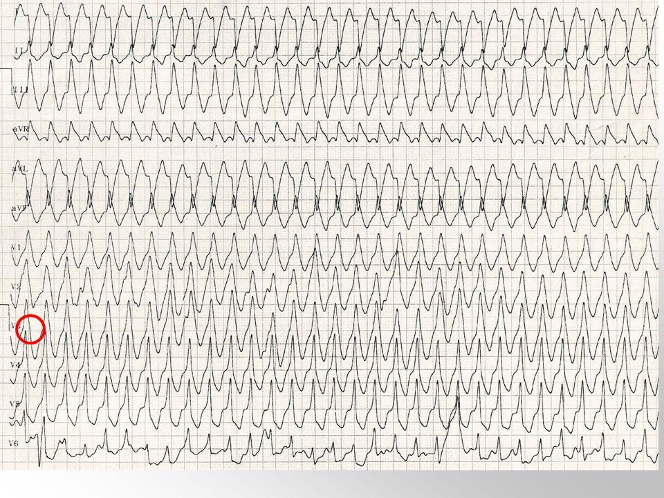 Pregunta 27. Un paciente, con antecedentes personales de infarto agudo de miocardio hace 4 años y disfunción sistólica de ventrículo izquierdo con FE del 35 %, se presenta en Urgencias con dolor precordial y disnea. La TA en ese momento es 90/55 y la sat O2 87 %. El ECG se muestra en la figura. Indique el binomio más correcto en el diagnóstico tratamiento de este paciente