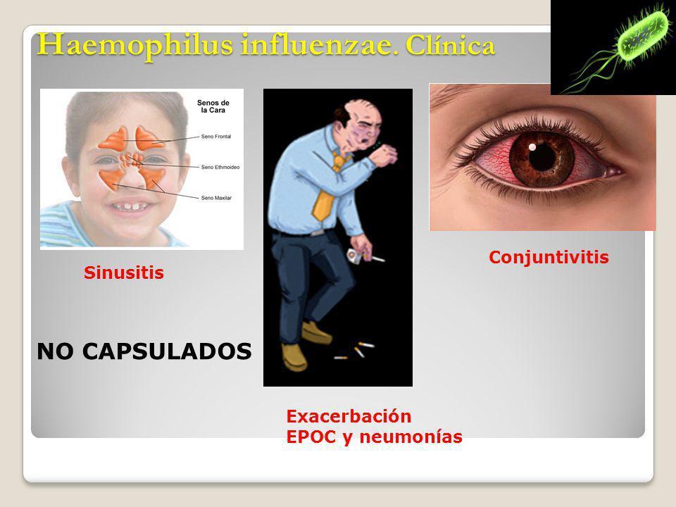 Haemophilus influenzae. Clínica