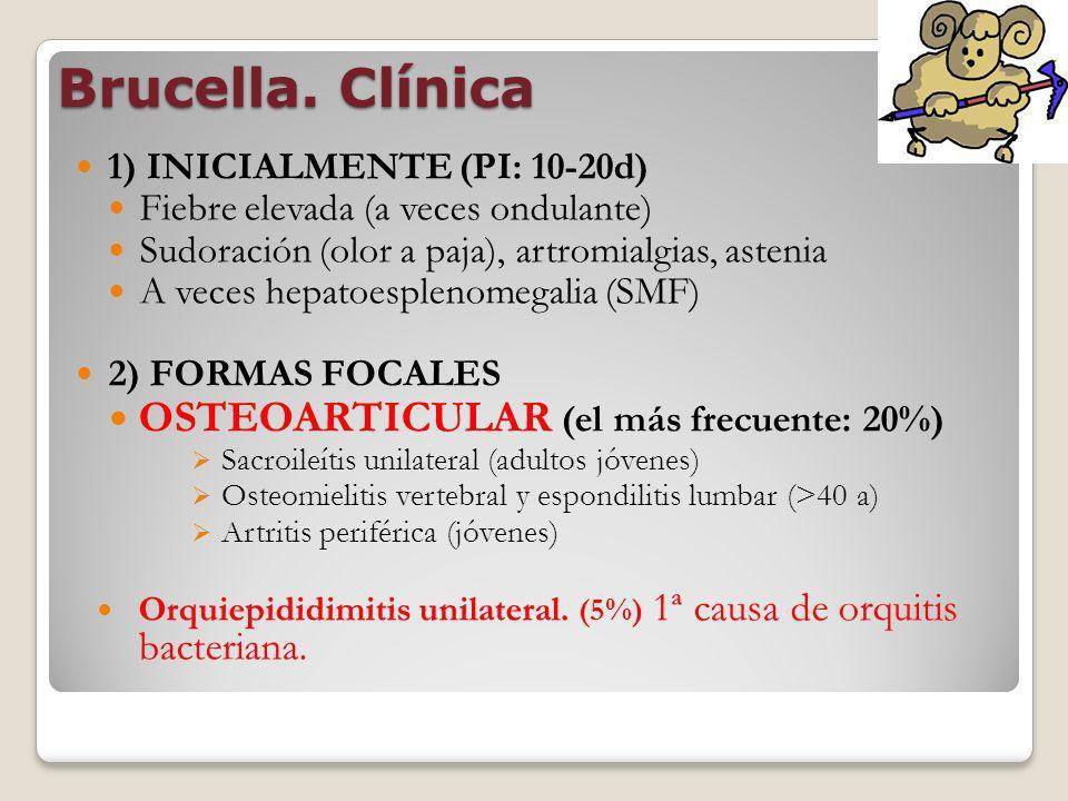 Brucella. Clínica OSTEOARTICULAR (el más frecuente: 20%)