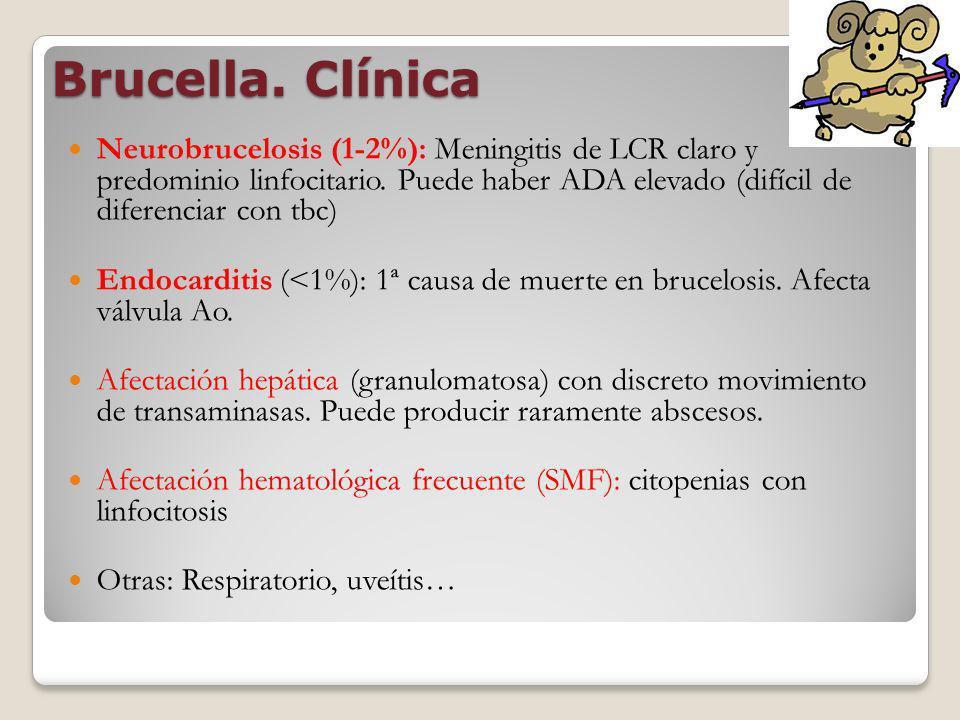 Brucella. Clínica