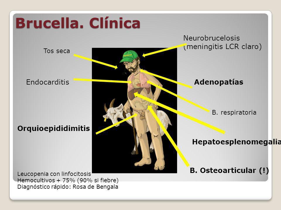 Brucella. Clínica Neurobrucelosis (meningitis LCR claro) Endocarditis