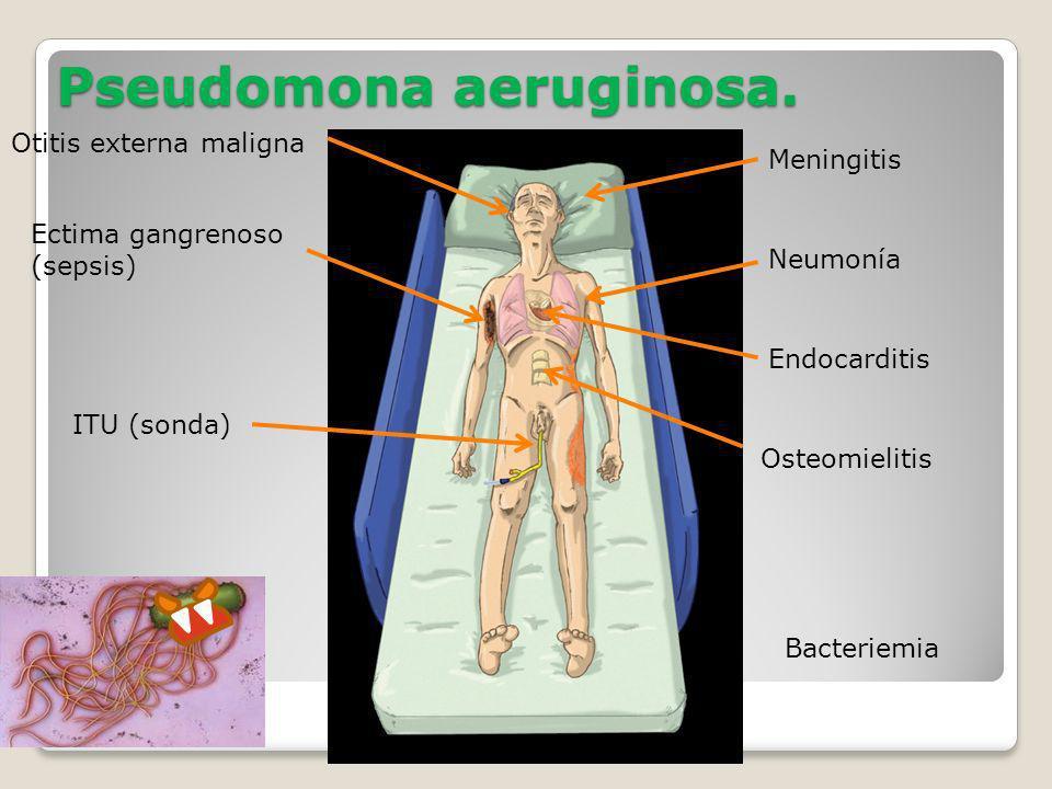 Pseudomona aeruginosa.