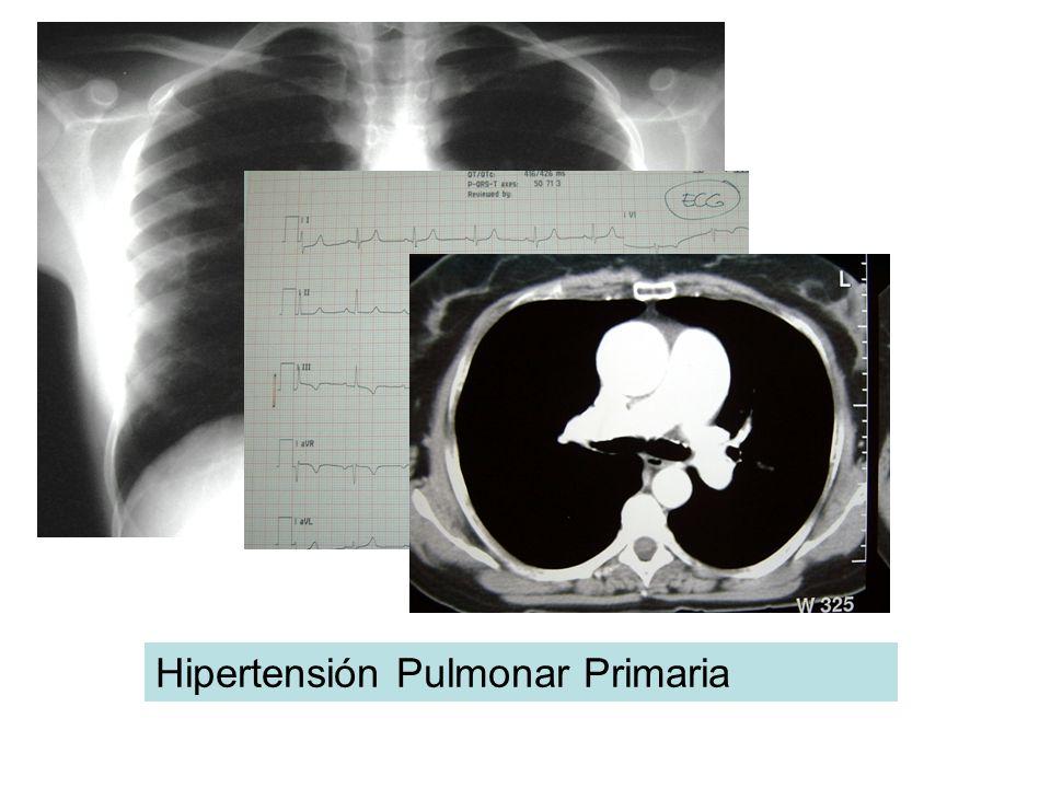 Hipertensión Pulmonar Primaria