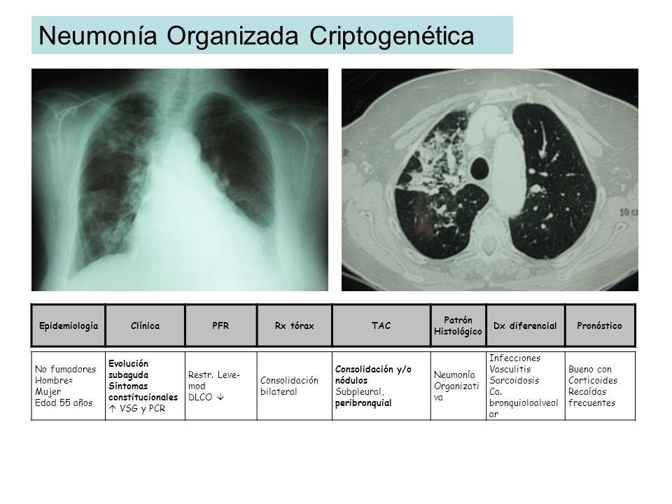 Neumonía Organizada Criptogenética
