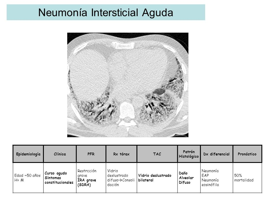 Neumonía Intersticial Aguda