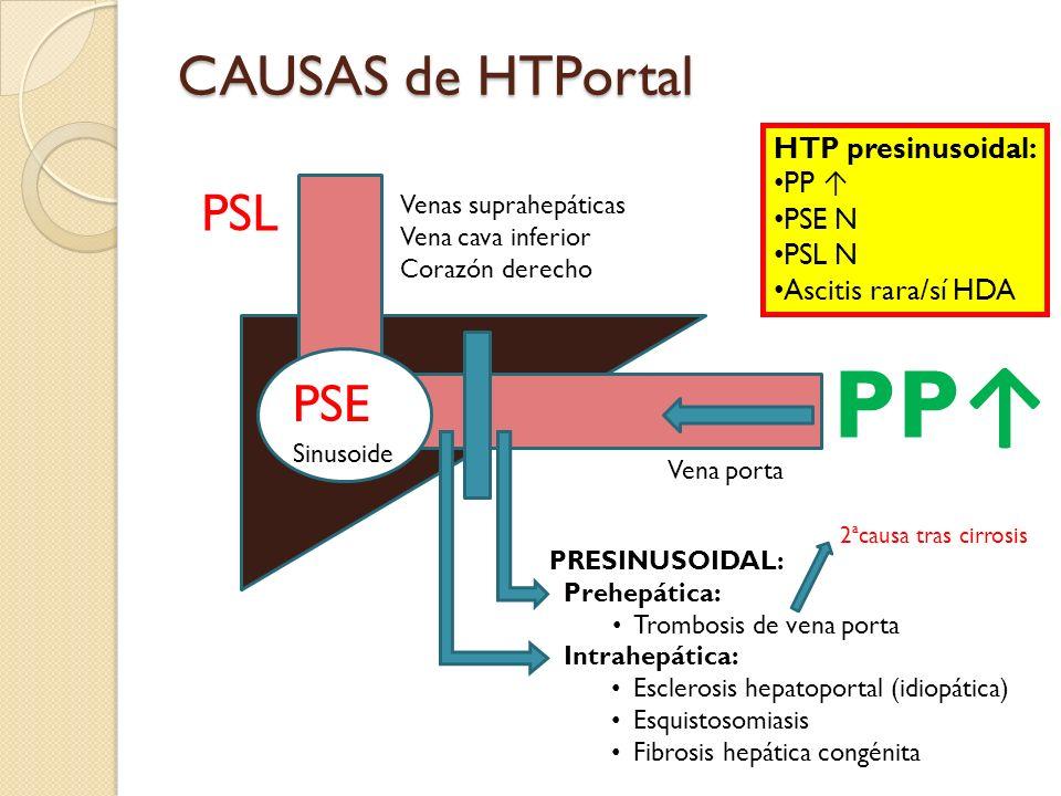 PP↑ CAUSAS de HTPortal PSL PSE HTP presinusoidal: PP ↑ PSE N PSL N