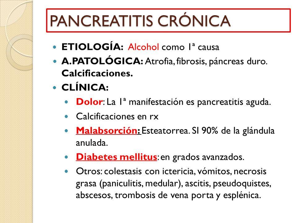 PANCREATITIS CRÓNICA ETIOLOGÍA: Alcohol como 1ª causa