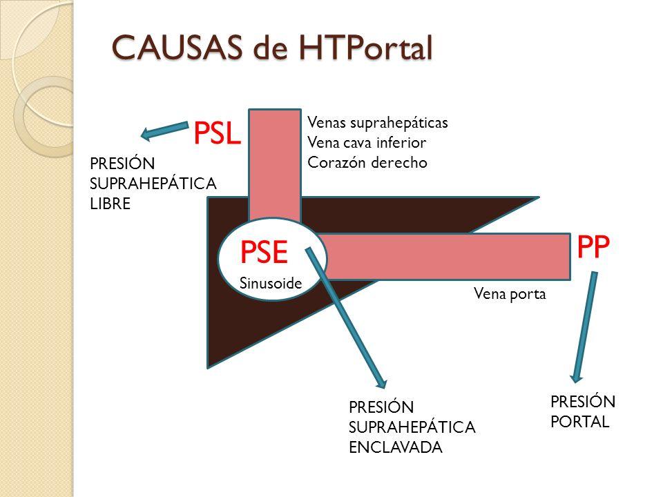 CAUSAS de HTPortal PSL PP PSE Venas suprahepáticas Vena cava inferior