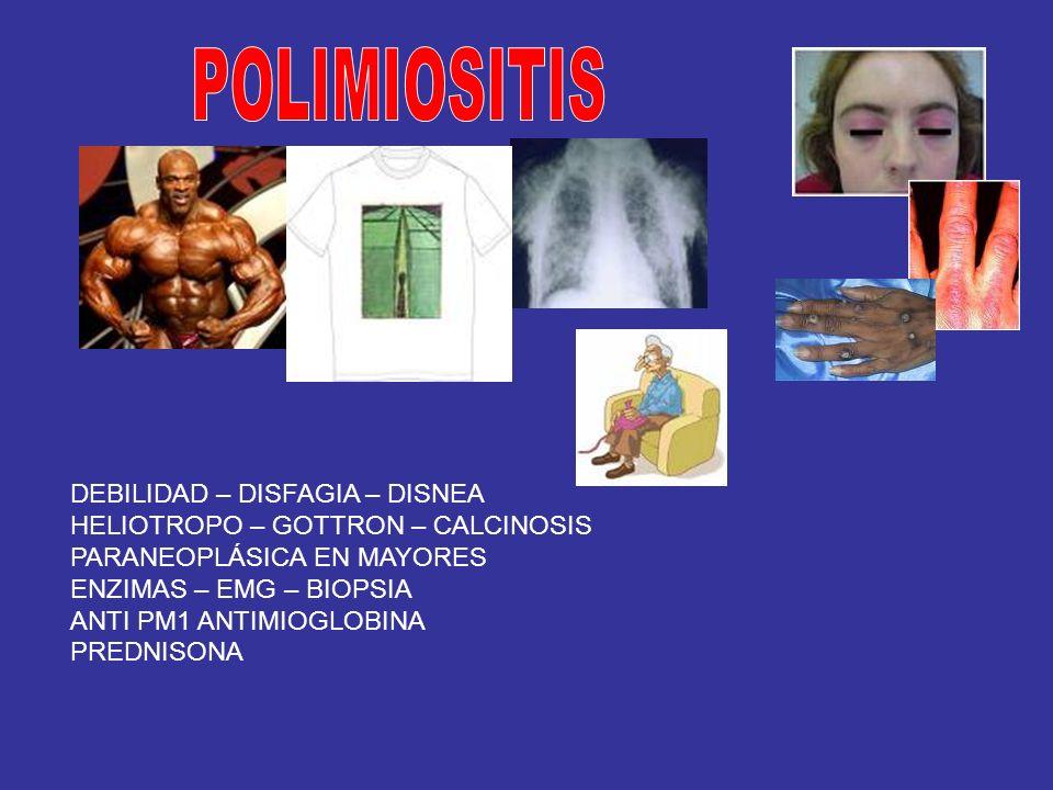 POLIMIOSITIS DEBILIDAD – DISFAGIA – DISNEA