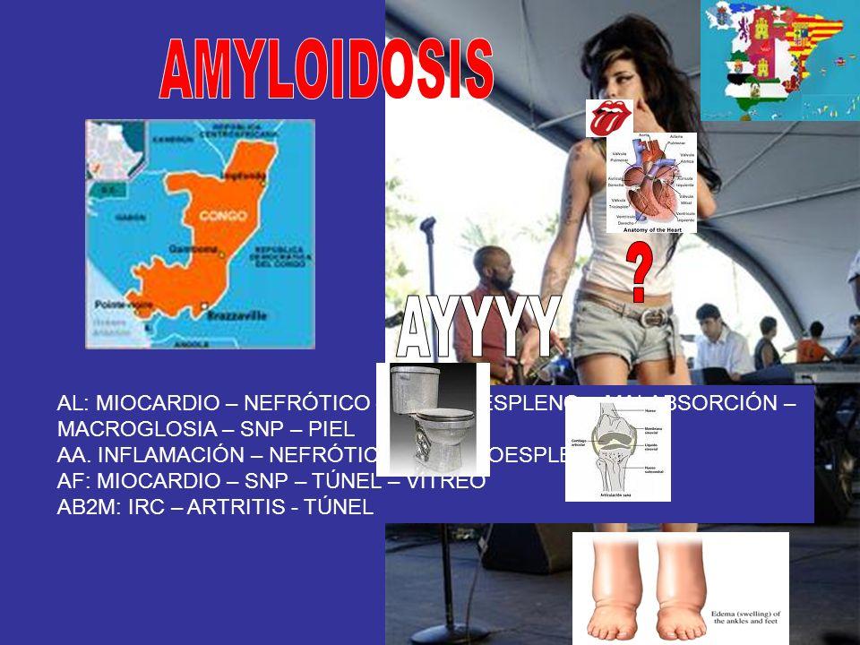 AMYLOIDOSIS AYYYY. AL: MIOCARDIO – NEFRÓTICO – HEPATOESPLENO – MALABSORCIÓN – MACROGLOSIA – SNP – PIEL.