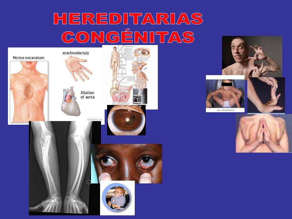 HEREDITARIAS CONGÉNITAS