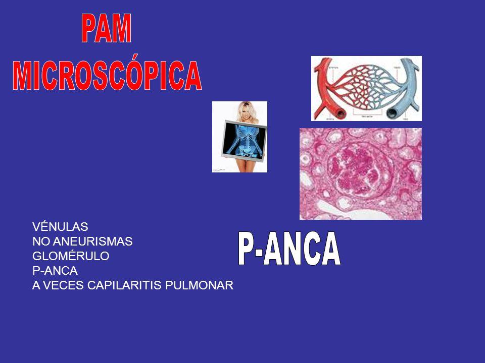 PAM MICROSCÓPICA P-ANCA VÉNULAS NO ANEURISMAS GLOMÉRULO P-ANCA