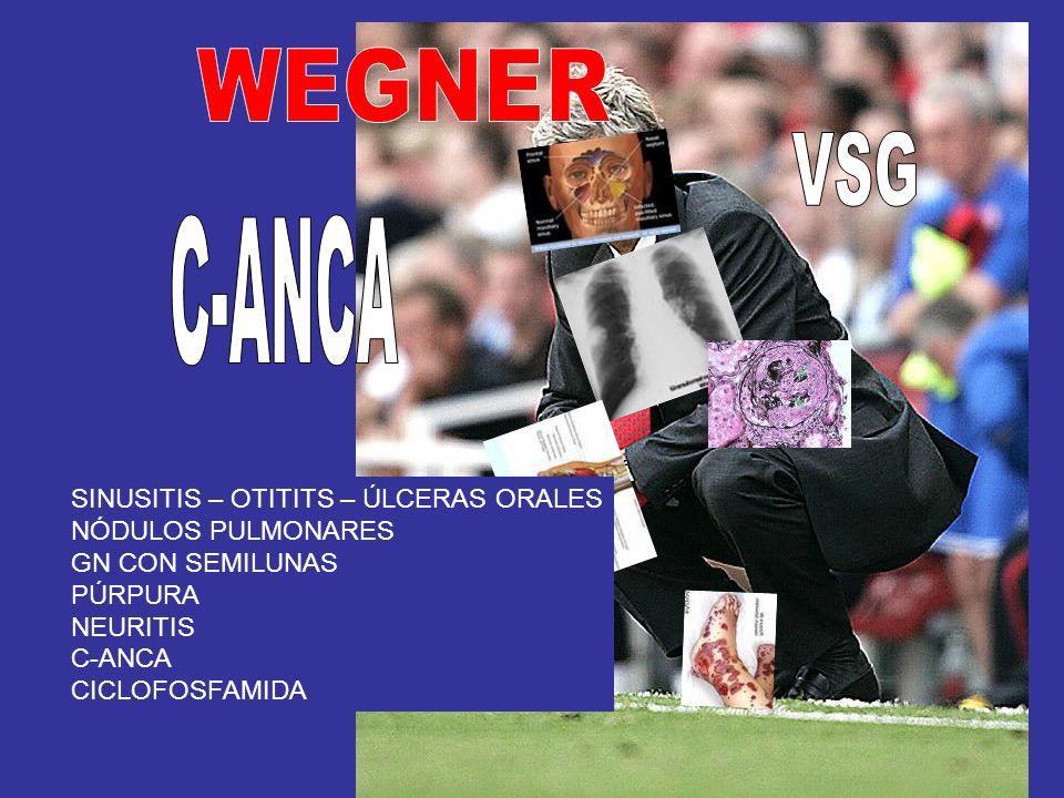 WEGNER VSG C-ANCA SINUSITIS – OTITITS – ÚLCERAS ORALES