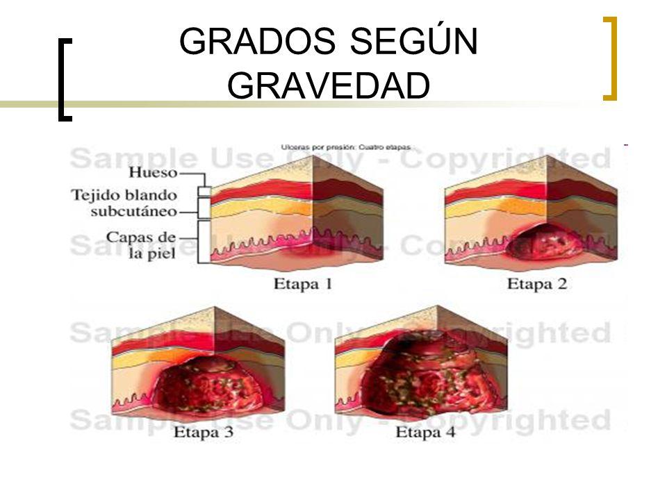 GRADOS SEGÚN GRAVEDAD