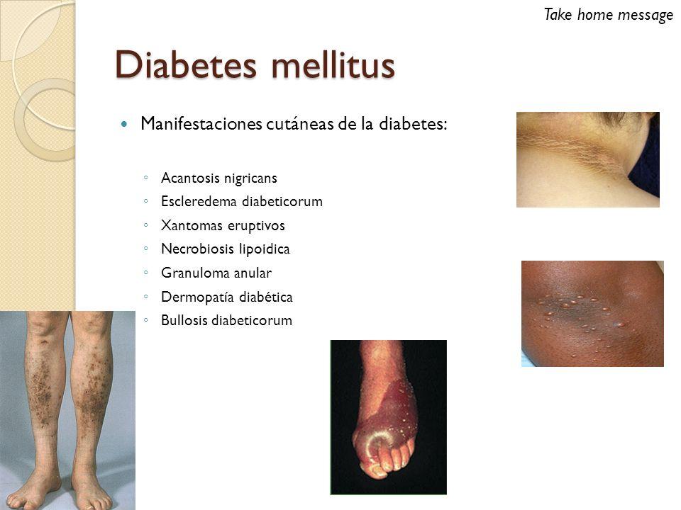 Diabetes mellitus Manifestaciones cutáneas de la diabetes: