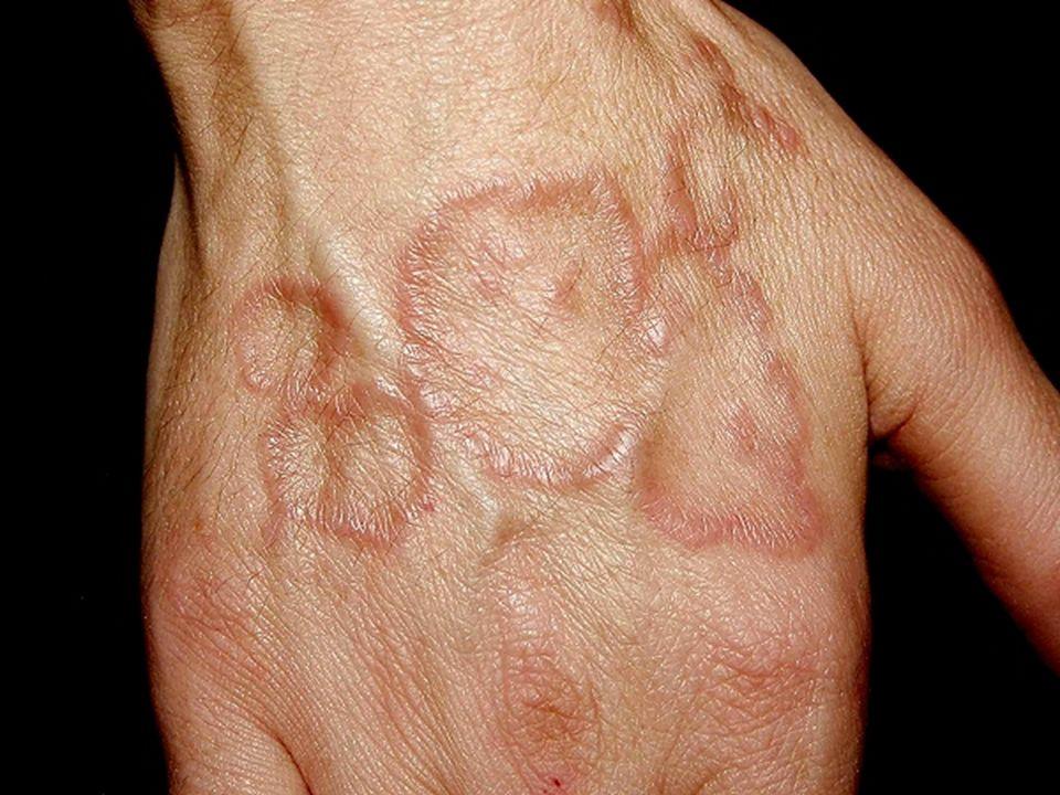 Granuloma anularPápulas o placas eritematovioláceas con distribución anular. Dorso de manos y brazos > pies y piernas > tronco.