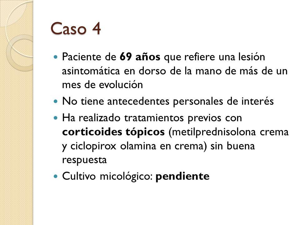 Caso 4Paciente de 69 años que refiere una lesión asintomática en dorso de la mano de más de un mes de evolución.