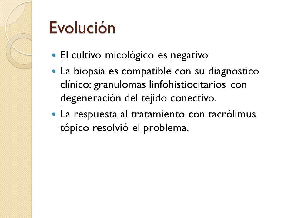 Evolución El cultivo micológico es negativo