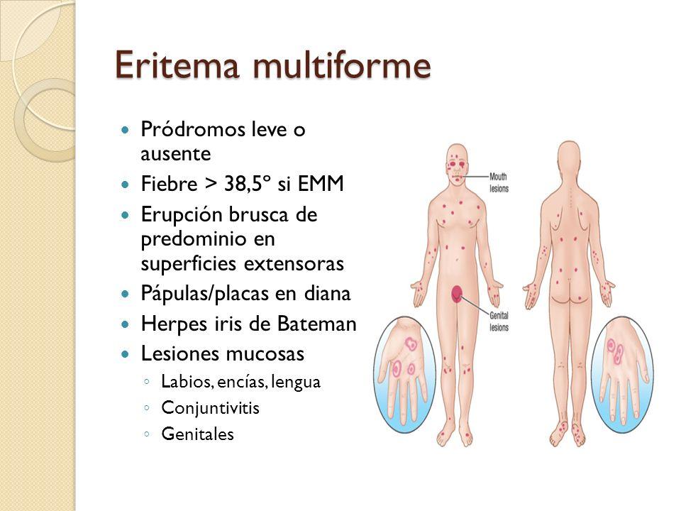 Eritema multiforme Pródromos leve o ausente Fiebre > 38,5º si EMM